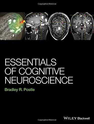 Essentials of Cognitive Neuroscience 1st edition by Postle, Bradley R. (2015) Hardcover