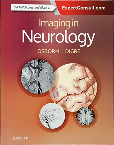 Imaging in Neurology