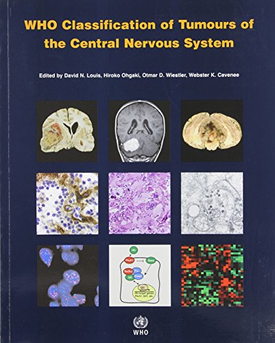 WHO Classification of Tumours of the Central Nervous System (IARC WHO Classification of Tumours) (v. 1)